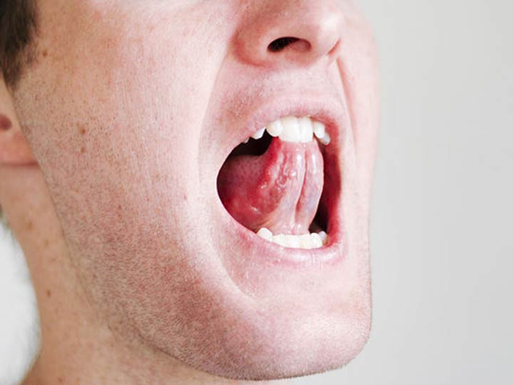 Tongue And Throat Exercise For Snoring