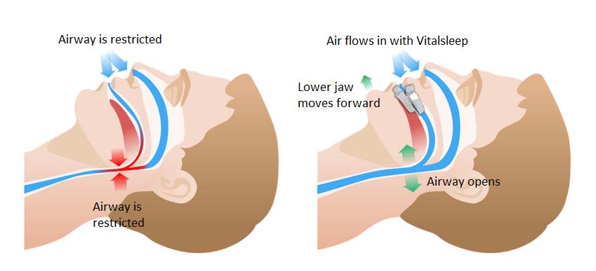 Does Vital Sleep Snore Works?